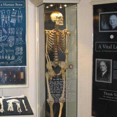 albee exhibit bone graft-skeleton